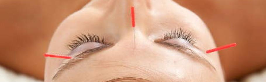 Ästhetische Akupunktur
