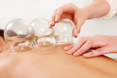 Schröpfbehandlung hilft bei Cellulite